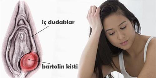 bartholin kisti nasıl tedavi edilir